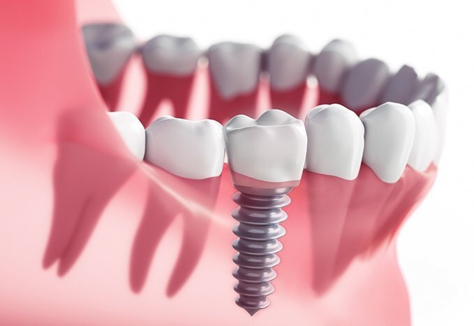 dental implant cost in Ocoee